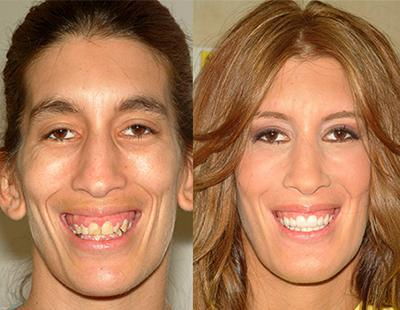 Amy's Extreme Smile Makeover
