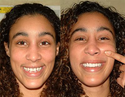 Lachelle's Extreme Smile Makeover