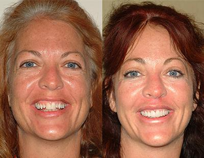 Tricia's Extreme Smile Makeover